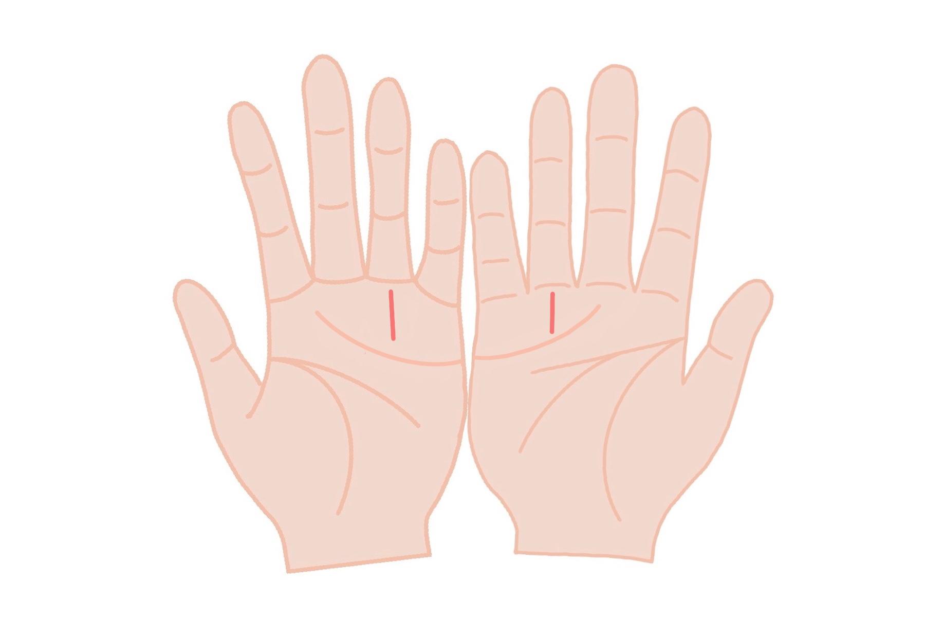太陽線:両手